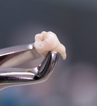 Close-up of extracted tooth held by forceps
